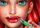 Ariel Lips Injections