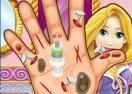 Rapunzel Hand Doctor